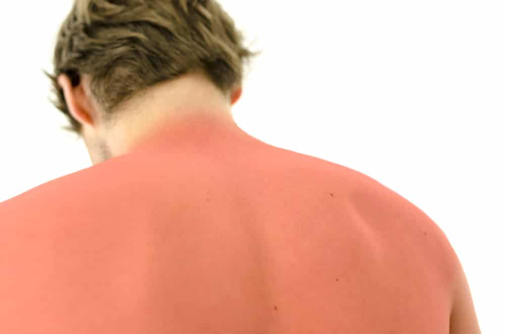 essential summer vocabulary esl sunburn